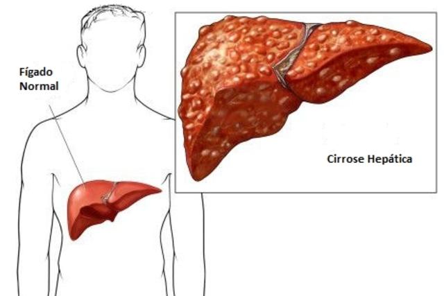 sintomas-de-cirrose-hepatica_506_l